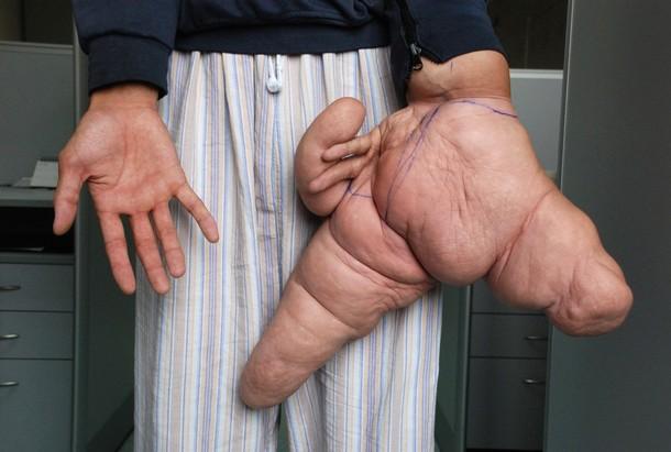 lui hua largest hand