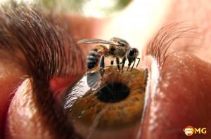 bee-sting-eye