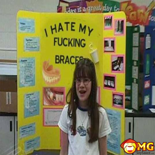 funny-i-hate-my-braces-school-projects