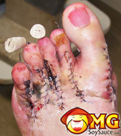 gross-toes-stitches