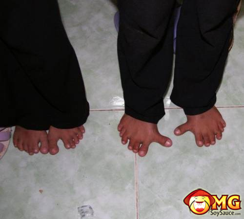 funny-feet-deformed
