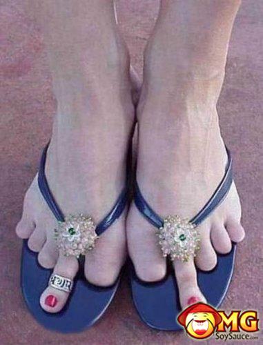 ugly-feet